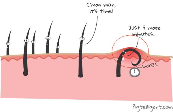 Bác sĩ da liễu khuyên bạn nên xử lý những sợi lông mọc ngược theo các bước này - Ảnh 2.