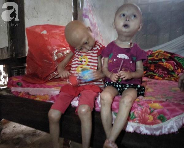 Niềm vui, niềm hi vọng lóe sáng đến với 2 bé gái bị nghẹo đầu tựa người ngoài hành tinh ở Tuyên Quang - Ảnh 3.