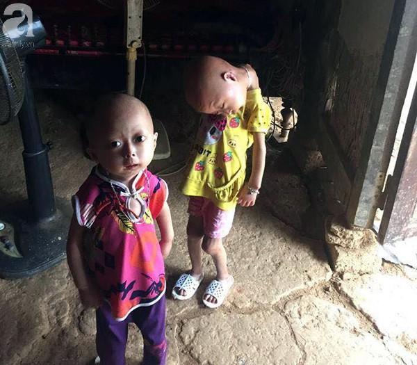 Niềm vui, niềm hi vọng lóe sáng đến với 2 bé gái bị nghẹo đầu tựa người ngoài hành tinh ở Tuyên Quang - Ảnh 1.