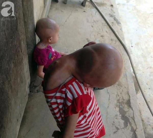 Niềm vui, niềm hi vọng lóe sáng đến với 2 bé gái bị nghẹo đầu tựa người ngoài hành tinh ở Tuyên Quang - Ảnh 2.