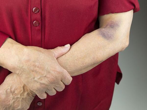 Xử lý những vết bầm tím trên da đúng cách, kịp thời phát hiện những căn bệnh nguy hiểm - Ảnh 2.
