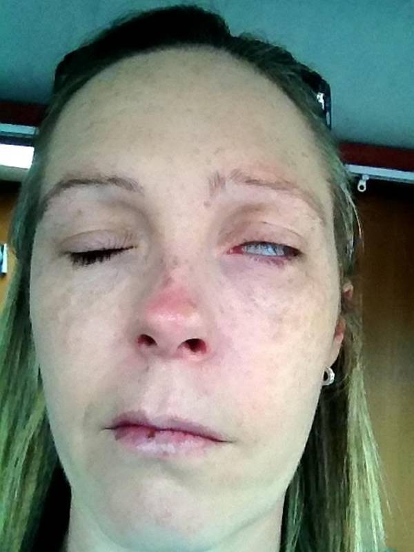 Tưởng chỉ bị côn trùng cắn bình thường, không ngờ người phụ nữ bị bệnh này dẫn đến liệt mặt, không thể nói - Ảnh 3.