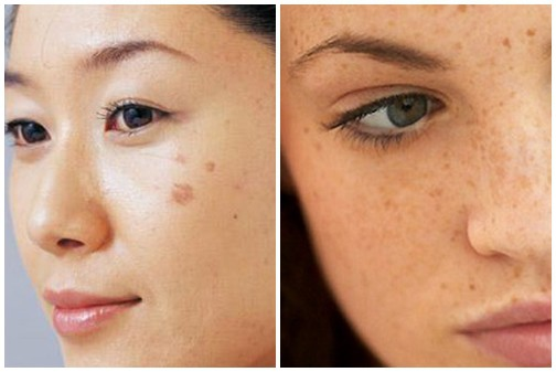 Hãy nghe bác sĩ da liễu chỉ ra các bệnh về da thông qua những dấu hiệu xuất hiện trên da - Ảnh 4.