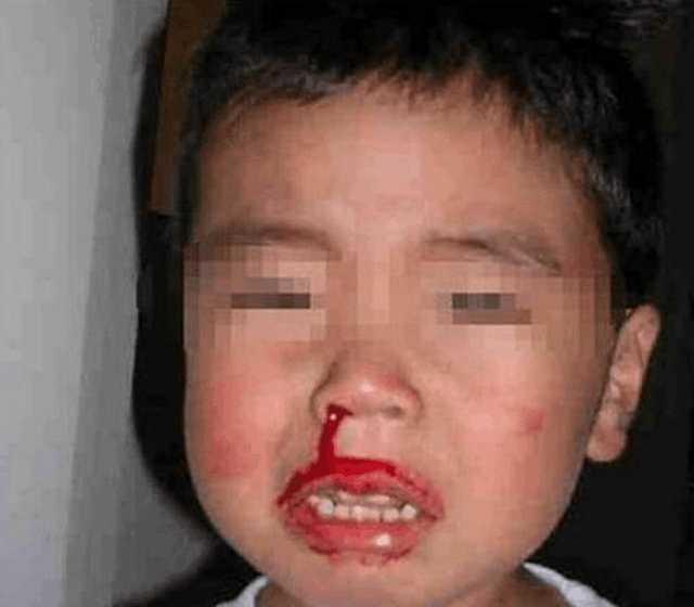 Cảnh báo: Trẻ bị chảy máu cam có thể nguy hiểm tính mạng nếu cứ ngửa đầu ra sau - Ảnh 2.