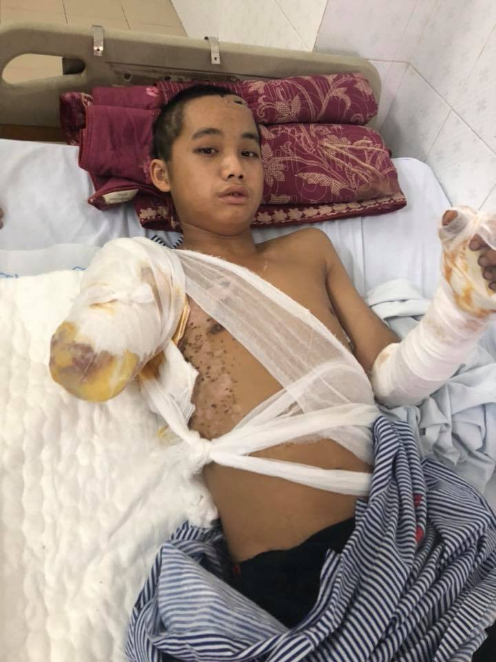 Bố chết mẹ bỏ đi biền biệt, chàng trai đang một mình nuôi 5 em nhỏ bỗng bị điện giật cụt tay, sống lay lắt  - Ảnh 2.