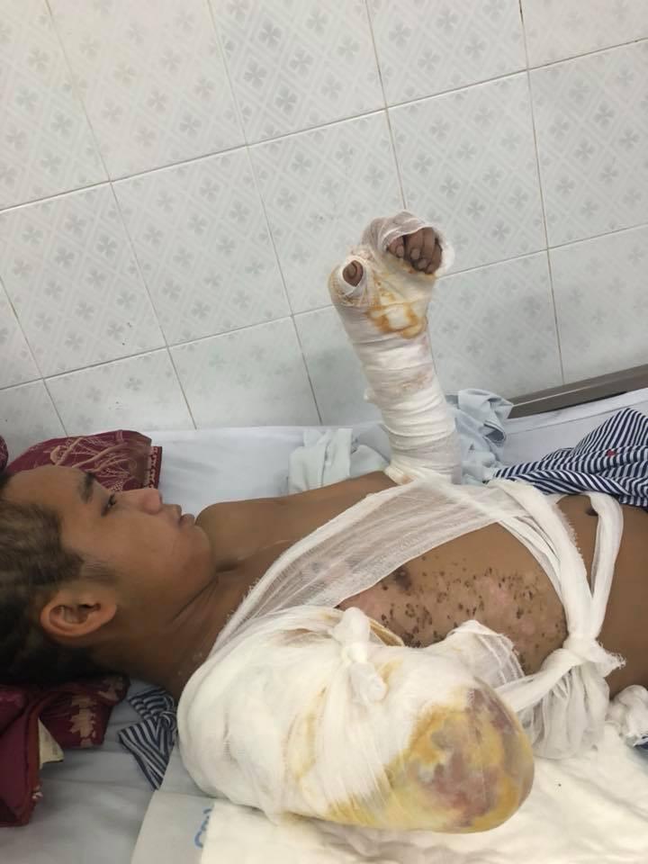 Bố chết mẹ bỏ đi biền biệt, chàng trai đang một mình nuôi 5 em nhỏ bỗng bị điện giật cụt tay, sống lay lắt  - Ảnh 3.