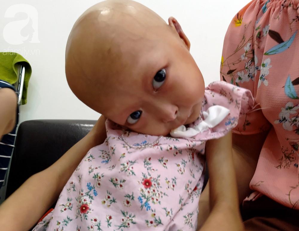 Mẹ của 2 bé gái bị đầu, cổ vẹo lệch ở Tuyên Quang: Giá như con khỏi bệnh, dù đánh đổi gì tôi cũng cam lòng - Ảnh 12.