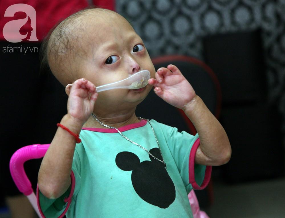 Mẹ của 2 bé gái bị đầu, cổ vẹo lệch ở Tuyên Quang: Giá như con khỏi bệnh, dù đánh đổi gì tôi cũng cam lòng - Ảnh 7.