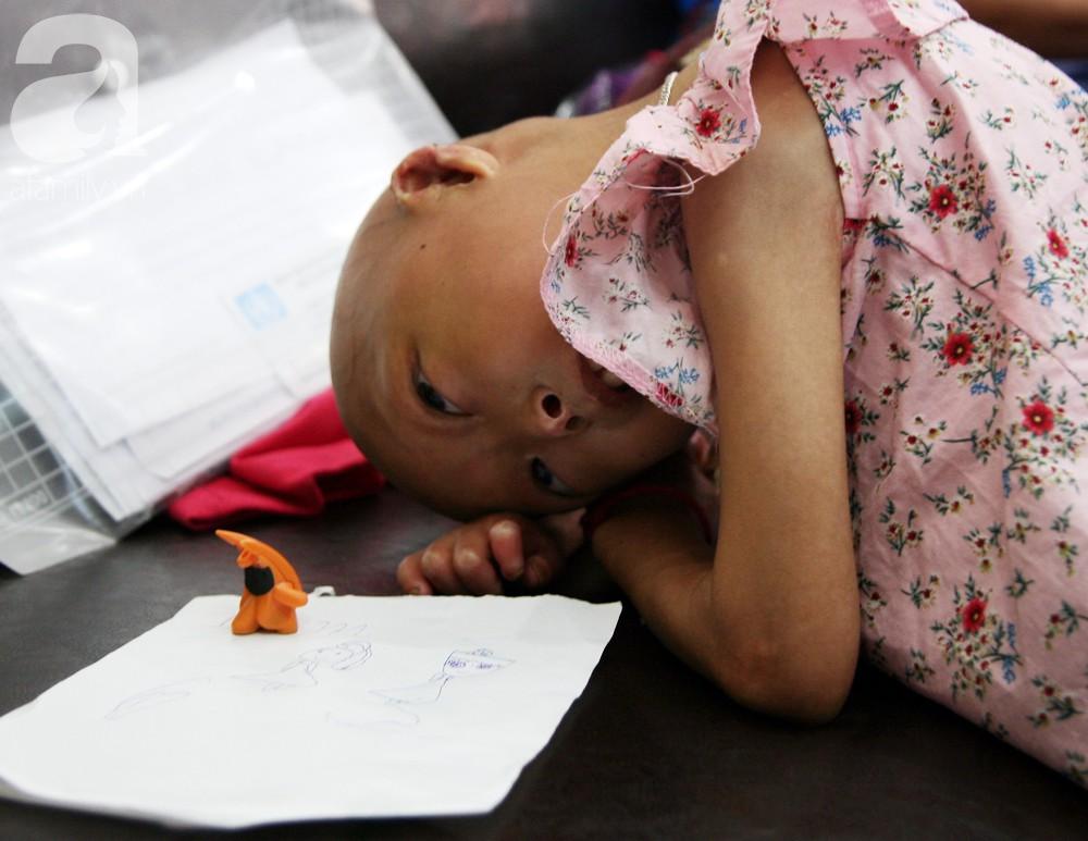 Mẹ của 2 bé gái bị đầu, cổ vẹo lệch ở Tuyên Quang: Giá như con khỏi bệnh, dù đánh đổi gì tôi cũng cam lòng - Ảnh 6.
