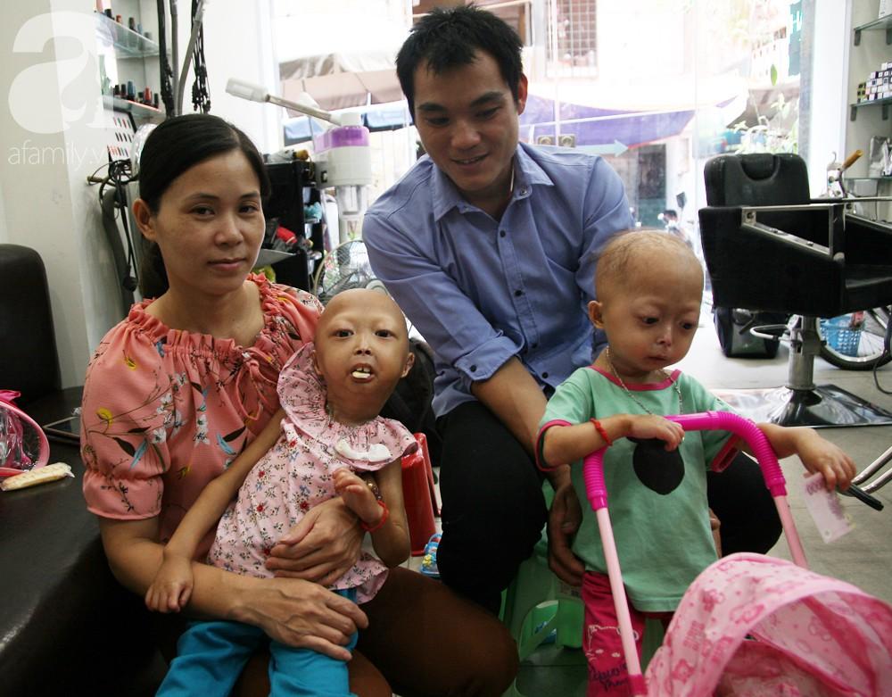 Mẹ của 2 bé gái bị đầu, cổ vẹo lệch ở Tuyên Quang: Giá như con khỏi bệnh, dù đánh đổi gì tôi cũng cam lòng - Ảnh 3.