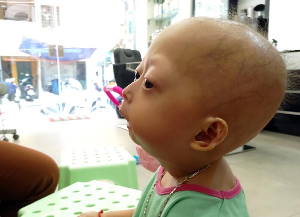 Mẹ của 2 bé gái bị đầu, cổ vẹo lệch ở Tuyên Quang: Giá như con khỏi bệnh, dù đánh đổi gì tôi cũng cam lòng - Ảnh 8.