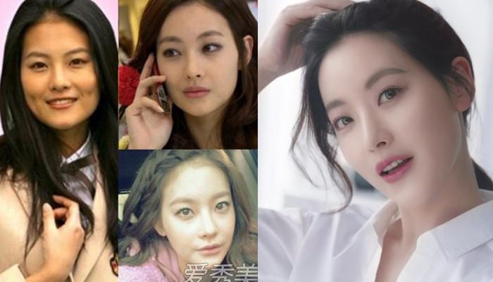 Ngoài nữ hoàng dao kéo Park Min Young, 4 nhan sắc thẩm mỹ này cũng được khen hết lời vì nhìn tự nhiên - Ảnh 5.