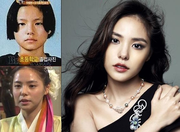 Ngoài nữ hoàng dao kéo Park Min Young, 4 nhan sắc thẩm mỹ này cũng được khen hết lời vì nhìn tự nhiên - Ảnh 8.
