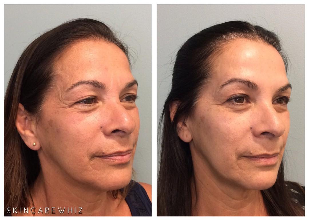 4 cách xóa nếp nhăn cho hiệu quả bất ngờ: từ dùng sản phẩm chăm sóc da đến nhờ cậy thủ thuật thẩm mỹ - Ảnh 5.