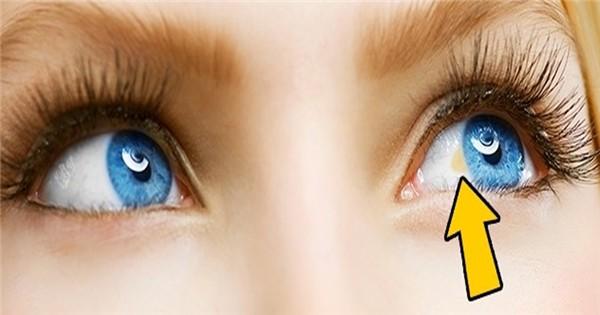 Dấu hiệu cảnh báo bệnh tật từ đôi mắt, phải đi khám ngay nếu không muốn mù lòa - Ảnh 2.