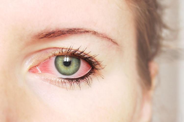 Dấu hiệu cảnh báo bệnh tật từ đôi mắt, phải đi khám ngay nếu không muốn mù lòa - Ảnh 3.