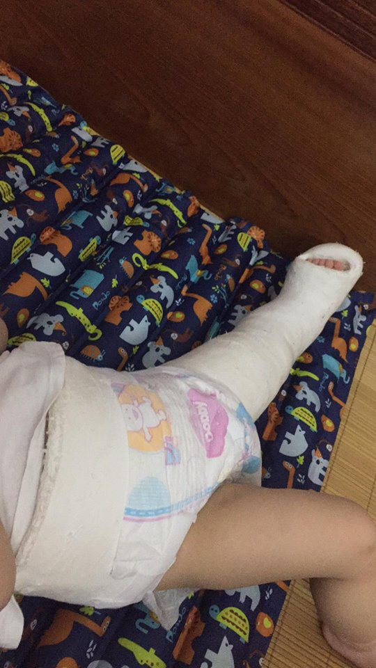 Tưởng chỉ bị đau chân bình thường, ai ngờ bé 10 tháng tuổi mắc phải căn bệnh lạ ở trẻ em - Ảnh 9.