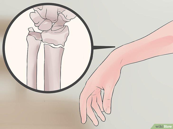 Phân biệt bong gân cổ tay và gãy xương cổ tay để xác định cần phải nhập viện hay không chính xác nhất! - Ảnh 1.