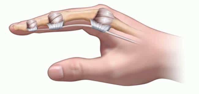 Phân biệt bong gân cổ tay và gãy xương cổ tay để xác định cần phải nhập viện hay không chính xác nhất! - Ảnh 2.