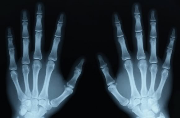 Phân biệt bong gân cổ tay và gãy xương cổ tay để xác định cần phải nhập viện hay không chính xác nhất! - Ảnh 5.