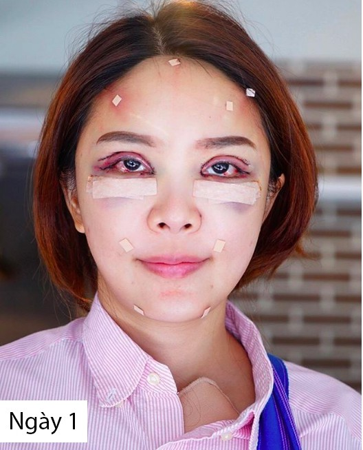 Hot girl Thái công khai loạt hình thẩm mỹ sau 20 ngày cùng hội bạn thân khiến nhiều người bất ngờ  - Ảnh 3.