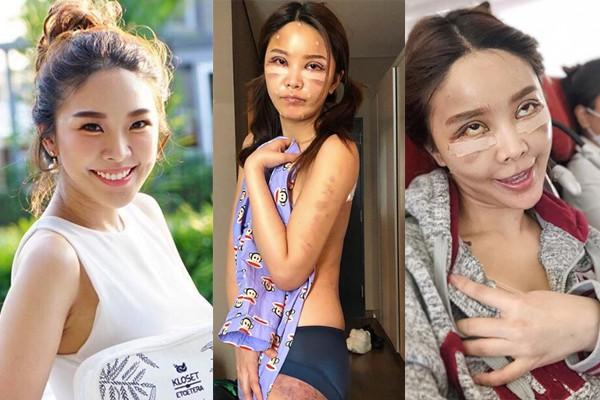 Hot girl Thái công khai loạt hình thẩm mỹ sau 20 ngày cùng hội bạn thân khiến nhiều người bất ngờ  - Ảnh 14.