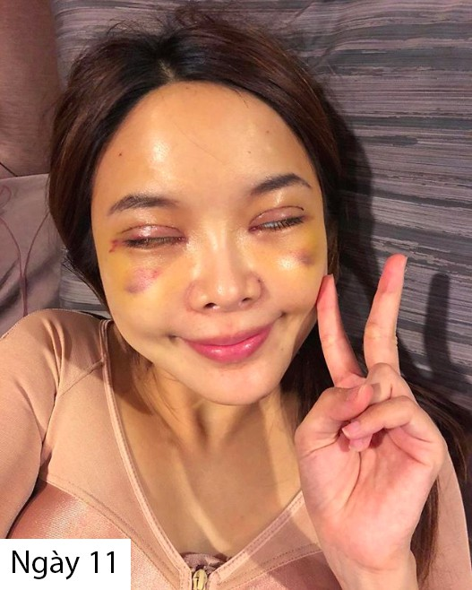 Hot girl Thái công khai loạt hình thẩm mỹ sau 20 ngày cùng hội bạn thân khiến nhiều người bất ngờ  - Ảnh 8.