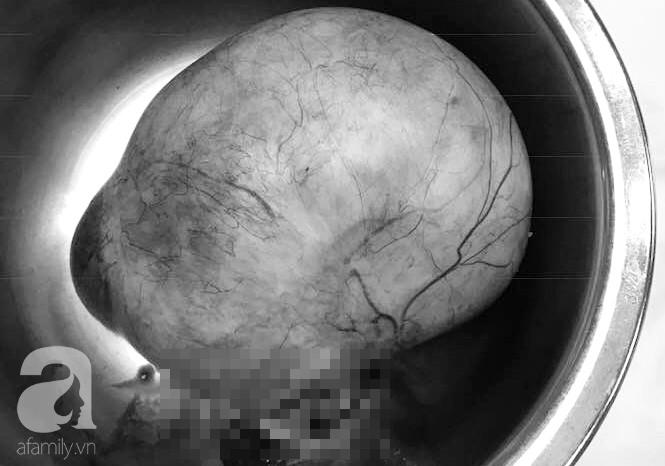 Mang chứng bệnh này từ lúc sinh con đầu nhưng chỉ uống thuốc giảm đau, 30 năm sau tính mạng người phụ nữ lâm vào nguy kịch - Ảnh 4.
