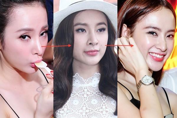 Những chiếc mũi hết lần này đến lần khác �nhìn xiêu vẹo của các người đẹp Vbiz - Ảnh 9.