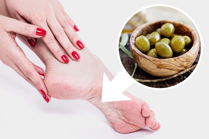 10 mẹo dưỡng da chân vừa dễ thực hiện lại hiệu quả cao, chị em hãy thử để sở hữu đôi bàn chân nuột nà - Ảnh 3.