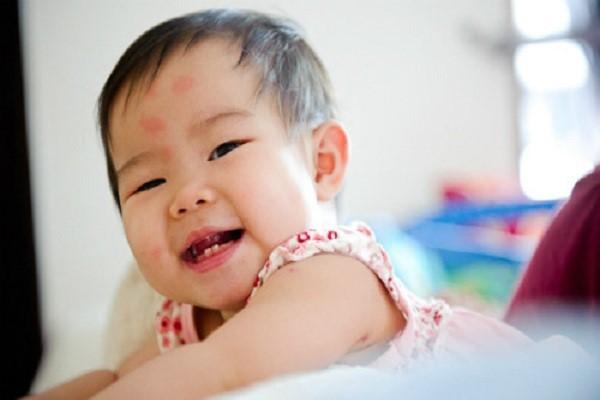 Bác sĩ Nhật gợi ý các cách bảo vệ làn da mỏng manh của trẻ trong mùa hè - Ảnh 2.