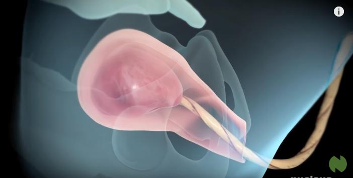Clip: Xem 3 giai đoạn của quá trình sinh thường từ lúc bắt đầu chuyển dạ cho tới khi bé chào đời - Ảnh 7.