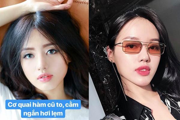Không phủ nhận hay vòng vo, 3 người đẹp này thừa nhận tiêm thẩm mỹ để cải thiện nhan sắc, níu kéo tuổi xuân - Ảnh 13.
