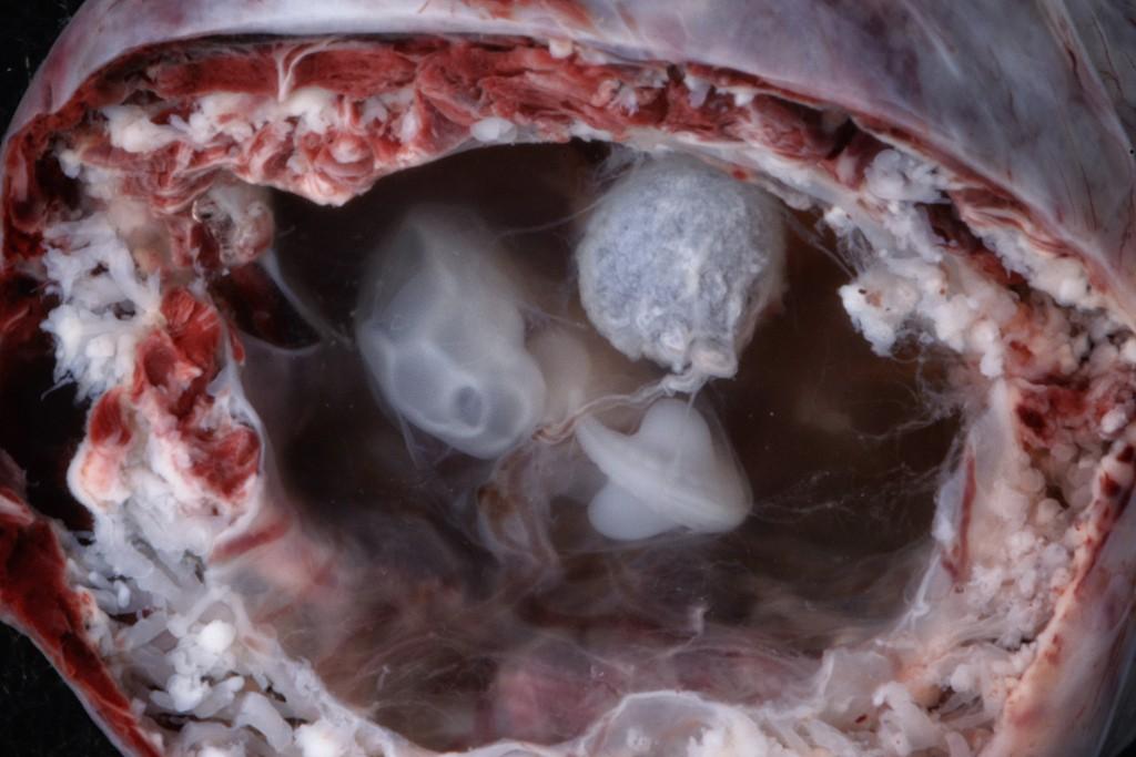 Những bức hình quý giá mô phỏng thai nhi phát triển trong bụng mẹ như một mầm sống kì diệu - Ảnh 4.