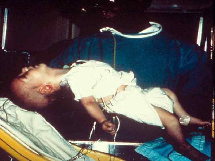 Bé trai tử vong vì món đồ uống rất tốt cho trẻ nhỏ nhưng lại cực độc với trẻ dưới 1 tuổi - Ảnh 3.