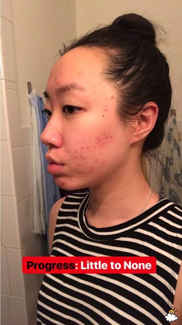 Thoa dầu dừa lên da trong 1 tuần để chữa sẹo mụn, cô nàng này đã nhận được kết quả đáng thất vọng - Ảnh 5.