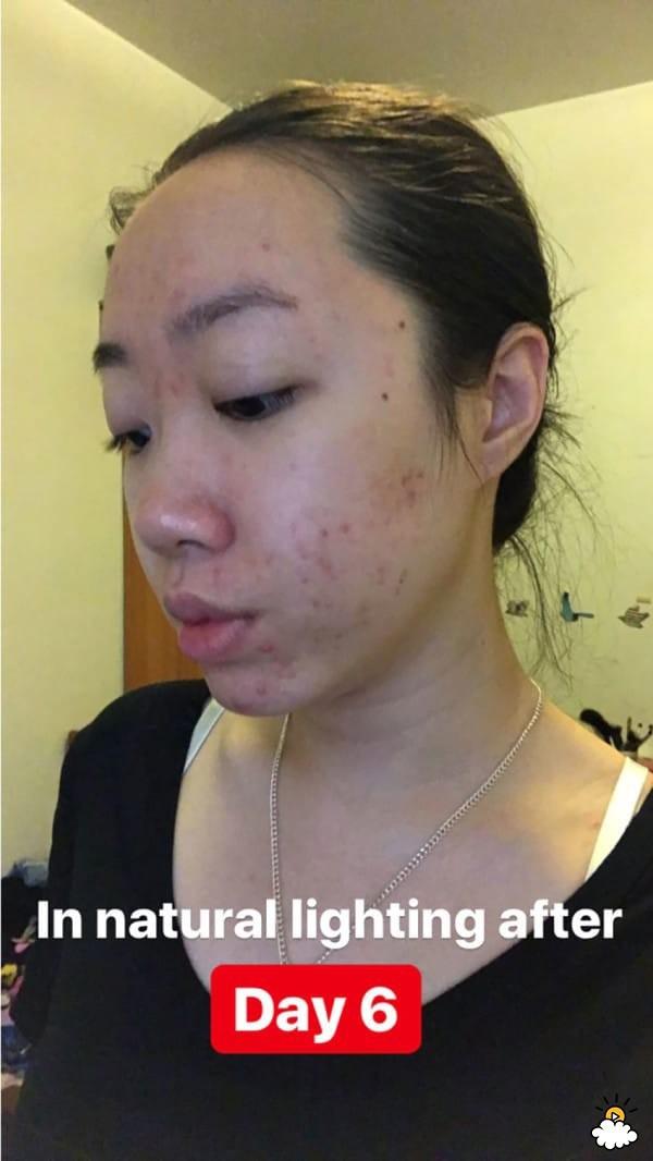 Thoa dầu dừa lên da trong 1 tuần để chữa sẹo mụn, cô nàng này đã nhận được kết quả đáng thất vọng - Ảnh 7.