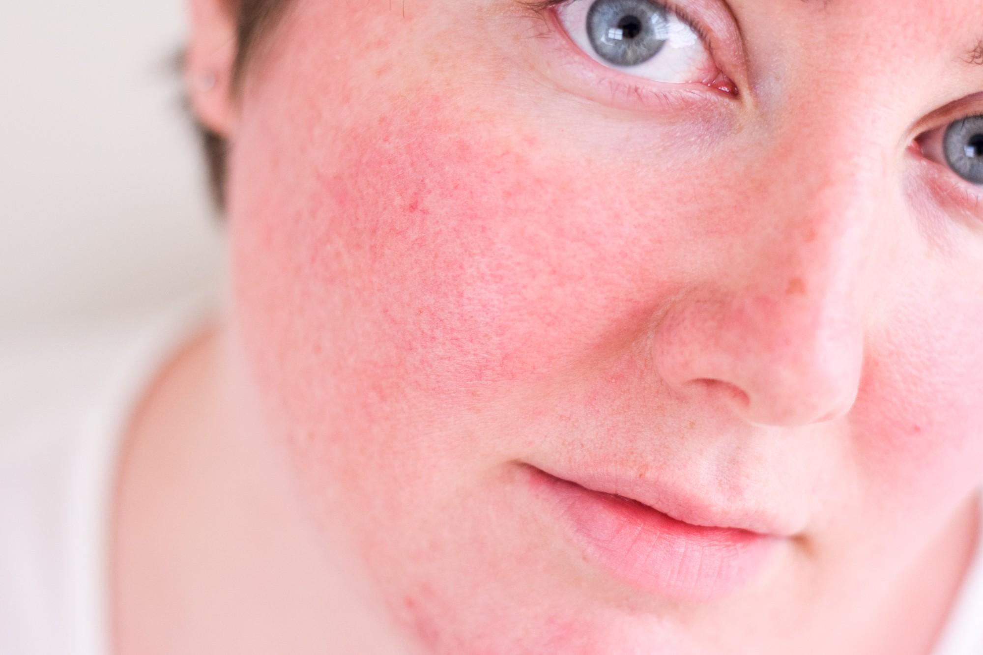 Nếu xuất hiện 1 trong 7 dấu hiệu này, bạn nên dừng sản phẩm chăm sóc da đang dùng ngay lập tức - Ảnh 1.