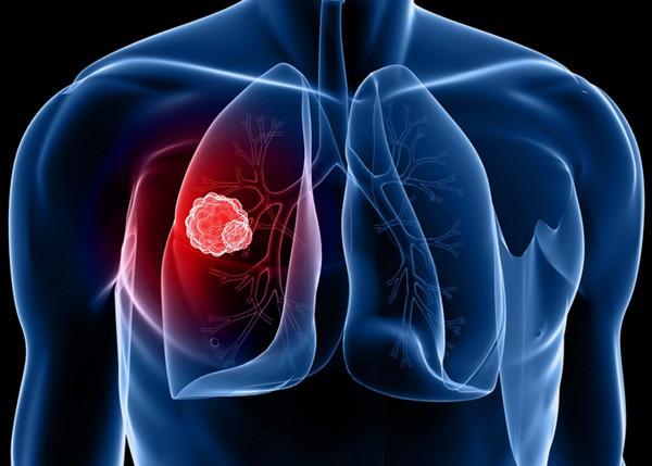 Người phụ nữ này bị ung thư phổi ở tuổi 31, nguyên nhân do chính thứ ẩn nấp trong nhà mà không ai nhìn thấy - Ảnh 3.
