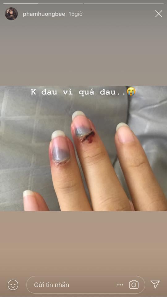Phạm Hương bất ngờ đăng tải hình ảnh các ngón tay bị bầm dập khiến fan sốt xình xịch vì lo lắng - Ảnh 2.