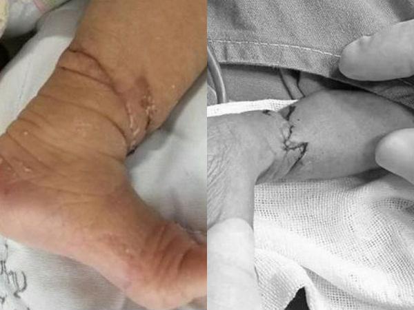 Đừng tưởng tay chân con có ngấn mà mừng, có thể bé đang mắc phải hội chứng nguy hiểm mà bố mẹ không biết - Ảnh 7.