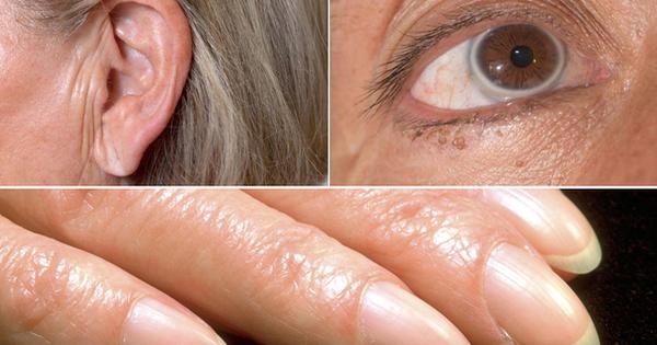 Chỉ cần nhìn dấu hiệu này ở mắt, tai và ngón tay, bạn sẽ biết mình bị bệnh tim - Ảnh 2.