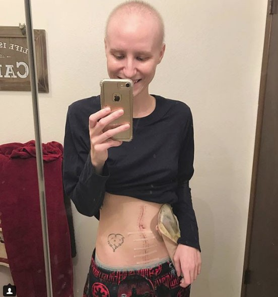 Bị ung thư buồng trứng ở tuổi 23 và những gì vận động viên này đã làm là ghi lại sự tàn phá của căn bệnh trên cơ thể cô - Ảnh 3.