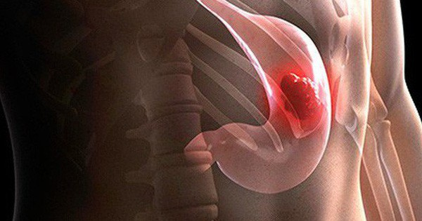 Những dấu hiệu âm thầm không gây đau đớn của bệnh ung thư dạ dày - Ảnh 1.
