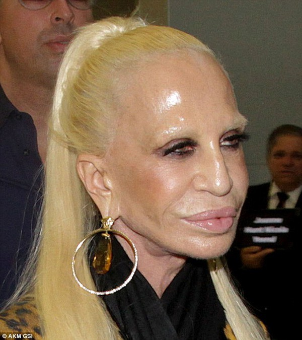 Mặt cứng đơ kém sắc, Lady Gaga bị nghi lạm dụng thẩm mỹ giống thảm họa dao kéo Donatella Versace - Ảnh 11.