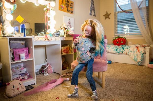 Mắc phải căn bệnh cực hiếm, cô bé 11 tuổi có gương mặt bà lão trở thành hiện tượng mạng xã hội thu hút đến 13 triệu người theo dõi - Ảnh 1.