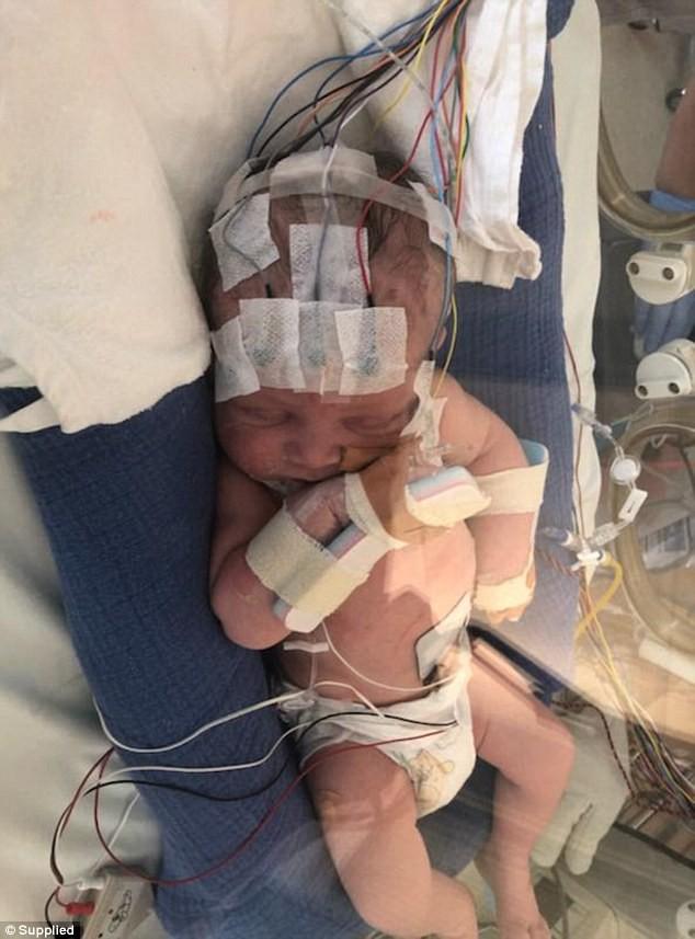 Cả thai kì hoàn toàn khỏe mạnh nhưng khi vừa đặt con mới sinh lên người, bà mẹ đã linh cảm điều không ổn - Ảnh 1.