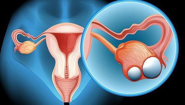 Vẫn sống khỏe dù bị ung thư buồng trứng, đây là điều mà người phụ nữ 30 tuổi không may mắn này muốn chị em hãy ghi nhớ - Ảnh 1.