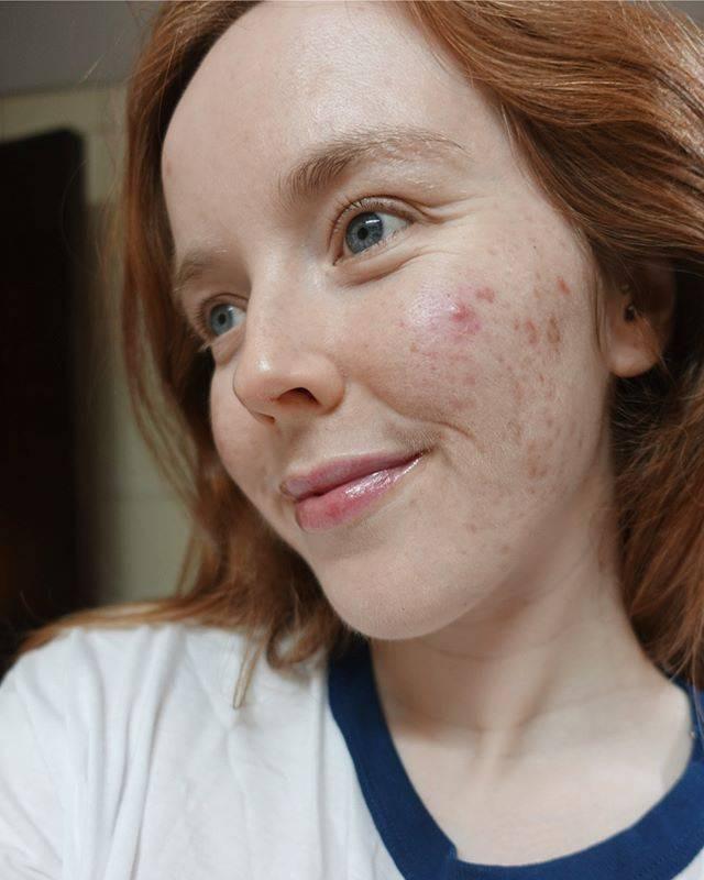 Chẳng nề hà đăng ảnh mặt mộc chi chít mụn và vết thâm, điều mà 12 cô nàng này muốn truyền tải khiến nhiều người nể phục - Ảnh 12.