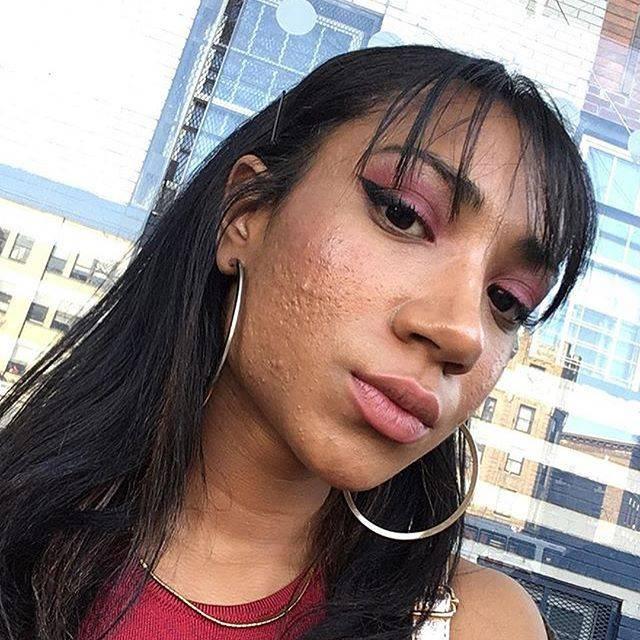 Chẳng nề hà đăng ảnh mặt mộc chi chít mụn và vết thâm, điều mà 12 cô nàng này muốn truyền tải khiến nhiều người nể phục - Ảnh 8.